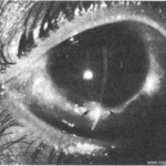 "Синдром ""красного глаза"". Увеит."