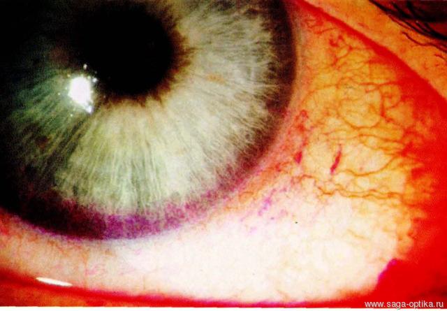 Синдром сухого глаза. Рис. 10