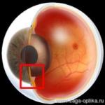 """Синдром """"красного глаза"""". Глаукома. Рис. 2"""