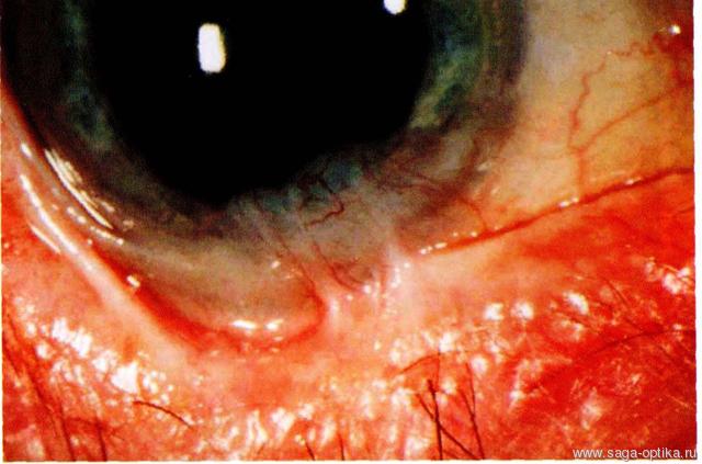Синдром сухого глаза. Рис. 11