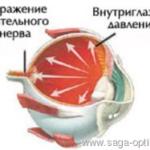"""Синдром """"красного глаза"""". Глаукома."""