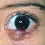 """Синдром """"красного глаза"""". Ячмень."""