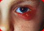 """Синдром """"красного глаза"""". Абсцесс века."""