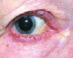 "Синдром ""красного глаза"". Блефарит."