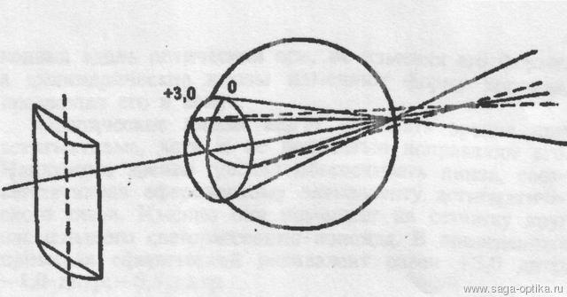 Коррекция астигматизма цилиндрической линзой