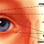 """Синдром """"красного глаза"""". Рисунок 4"""