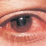 """Синдром """"красного глаза"""". Коньюктивит."""