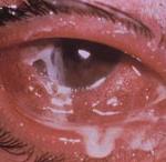 """Синдром """"красного глаза"""". Коньюктивит. Рис. 2"""