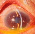 """Синдром """"красного глаза"""". Хламидии."""
