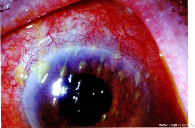 Синдром сухого глаза. Рис. 7