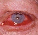 """Синдром """"красного глаза"""". Аллергический коньюктивит."""