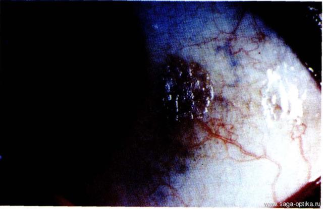 Синдром сухого глаза. Рис. 8
