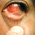 """Синдром """"красного глаза"""". Заболевания склеры."""