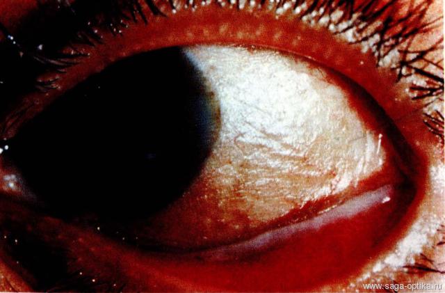 Синдром сухого глаза. Рис. 9